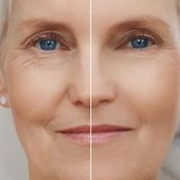 Revitol Eye Cream Pros & Cons