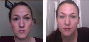 revitol eye cream before & after